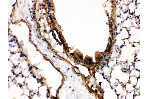 Immunohistochemistry (IHC) image for anti-MAP2K7 antibody (Mitogen-Activated Protein Kinase Kinase 7) (AA 2-40) (ABIN3043875)