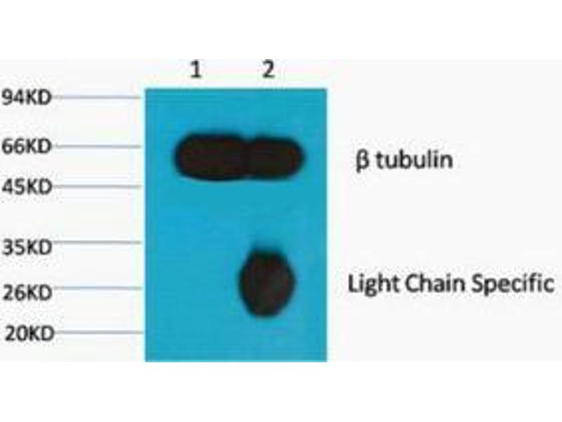 Immunoprecipitation (IP) image for anti-TUBB antibody (Tubulin, beta) (ABIN3181209)