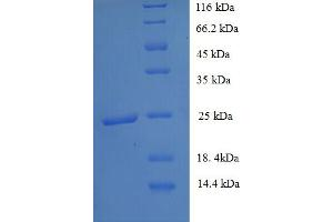 Image no. 1 for Solute Carrier Family 26, Member 3 (SLC26A3) (AA 814-1011), (partial) protein (His tag) (ABIN5713112)