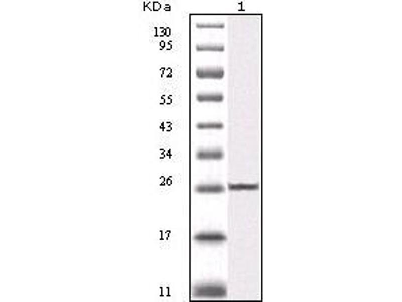 Western Blotting (WB) image for anti-IKBKB antibody (Inhibitor of kappa Light Polypeptide Gene Enhancer in B-Cells, Kinase beta) (ABIN1724659)