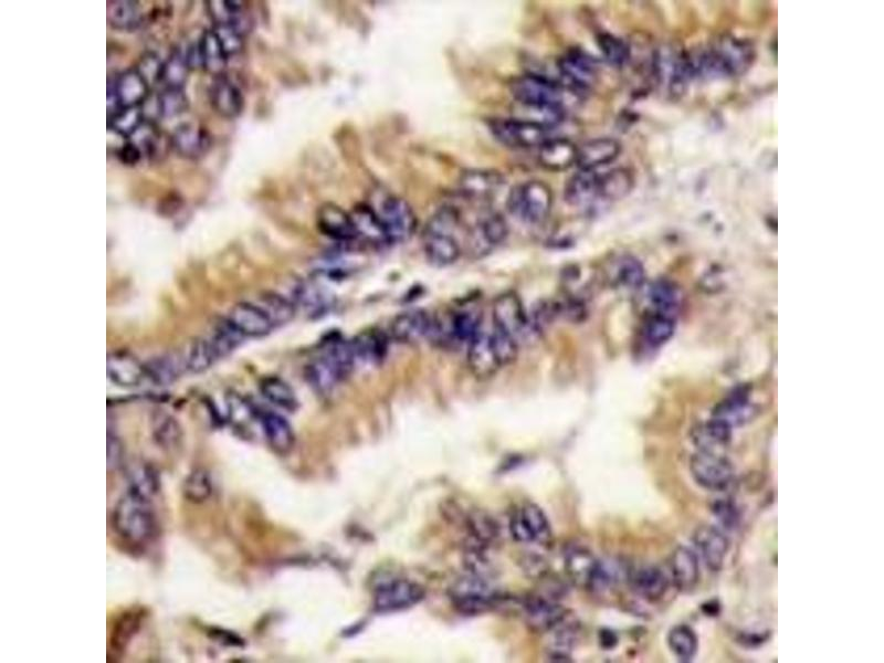 Immunohistochemistry (Paraffin-embedded Sections) (IHC (p)) image for anti-ERK2 antibody (Mitogen-Activated Protein Kinase 1) (Middle Region) (ABIN359461)
