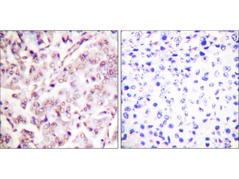 Image no. 3 for anti-V-Ets erythroblastosis Virus E26 Oncogene Homolog 1 (Avian) (ETS1) (pThr38) antibody (ABIN1576388)