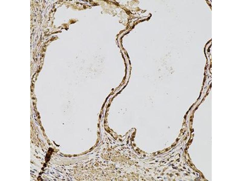 Image no. 7 for anti-Fibroblast Growth Factor 2 (Basic) (FGF2) antibody (ABIN1872685)