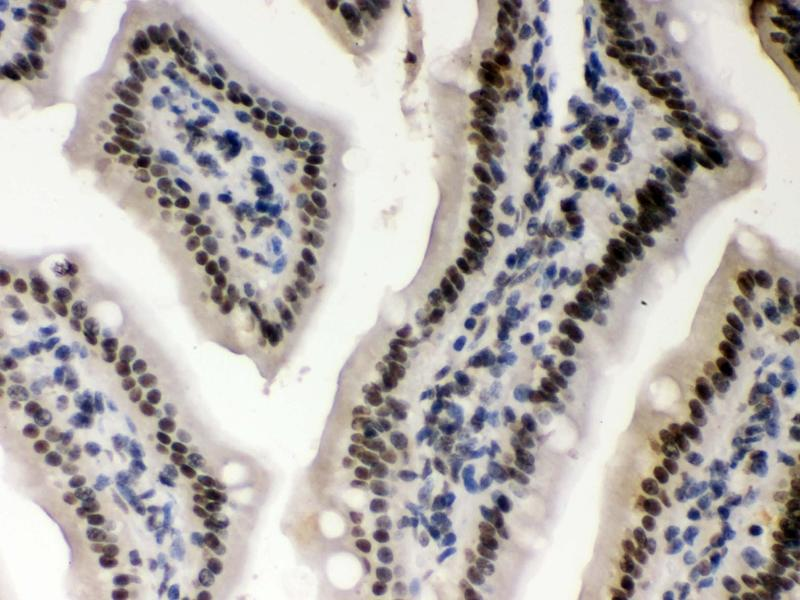 Immunohistochemistry (IHC) image for anti-Casein Kinase 1, alpha 1 (CSNK1A1) (AA 30-68), (N-Term) antibody (ABIN3042767)