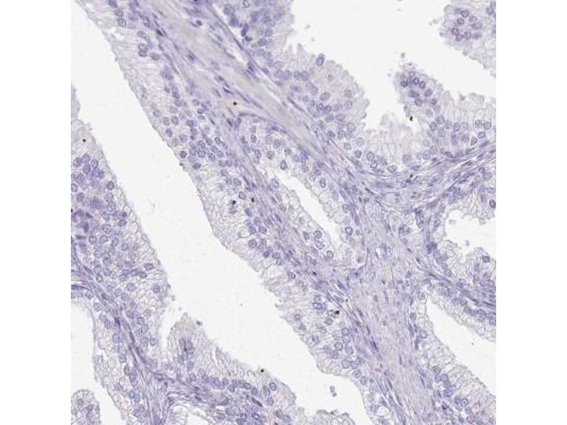 Immunohistochemistry (Paraffin-embedded Sections) (IHC (p)) image for anti-Cysteine and Glycine-Rich Protein 3 (CSRP3) antibody (ABIN4300721)