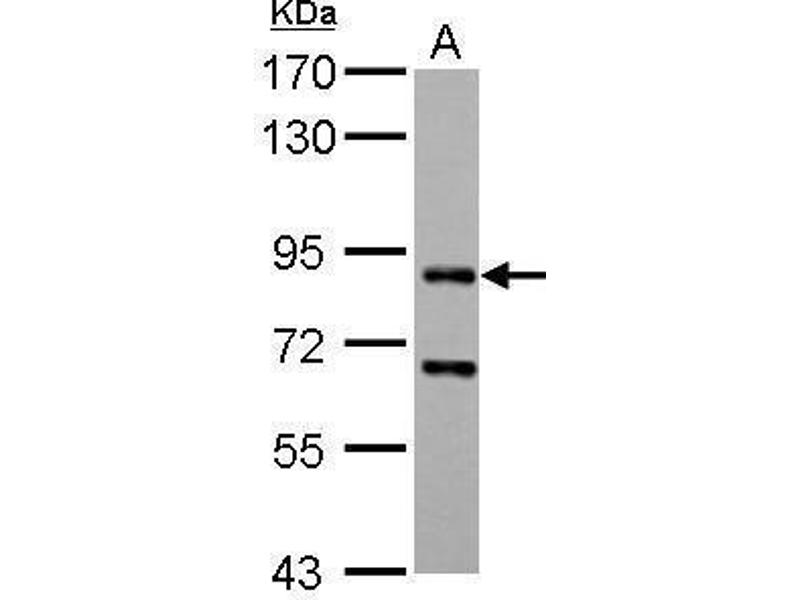 Image no. 1 for anti-CD2-Associated Protein (Cd2ap) (Center) antibody (ABIN2856284)