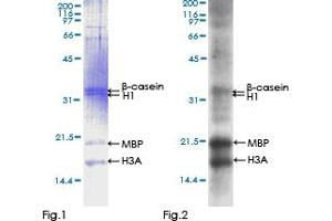 Image no. 1 for FYN Oncogene Related To SRC, FGR, YES (FYN) (AA 1-482) protein (GST tag) (ABIN1354567)