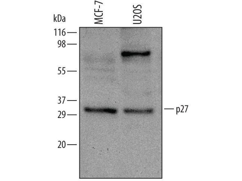 Western Blotting (WB) image for anti-Cyclin-Dependent Kinase Inhibitor 1B (p27, Kip1) (CDKN1B) (AA 1-198) antibody (ABIN4898980)