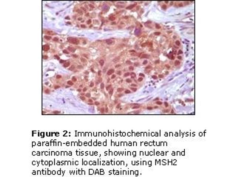 Immunohistochemistry (IHC) image for anti-MSH2 antibody (ABIN151294)