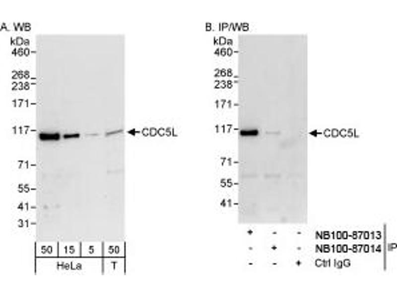 Western Blotting (WB) image for anti-CDC5 Cell Division Cycle 5-Like (S. Pombe) (CDC5L) (AA 752-802) antibody (ABIN257748)