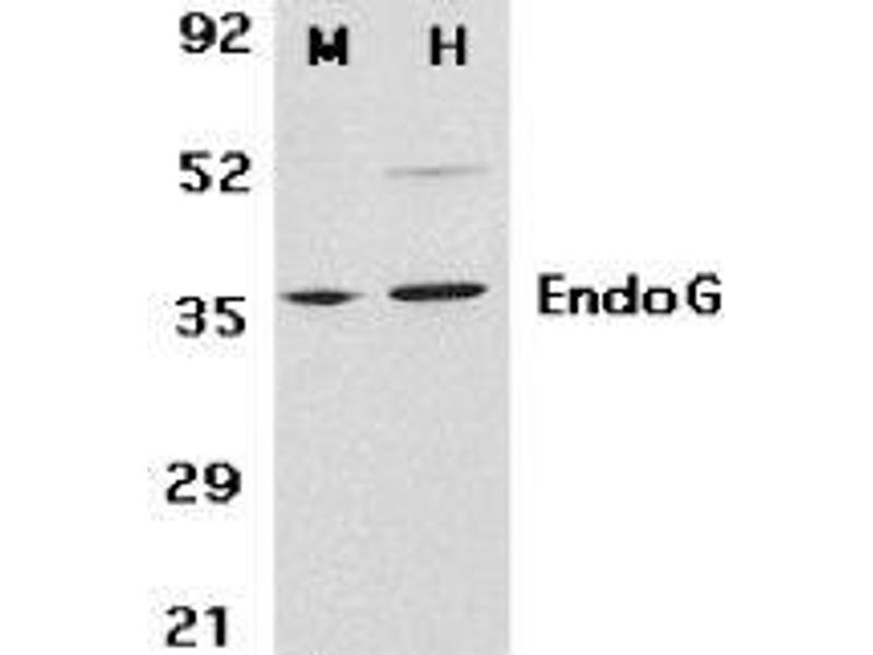 Western Blotting (WB) image for anti-Endonuclease G antibody (ENDOG) (ABIN499796)