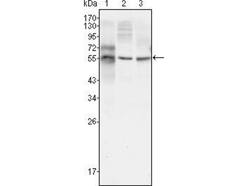 Western Blotting (WB) image for anti-TUBB3 antibody (Tubulin, Beta, 3) (ABIN969447)