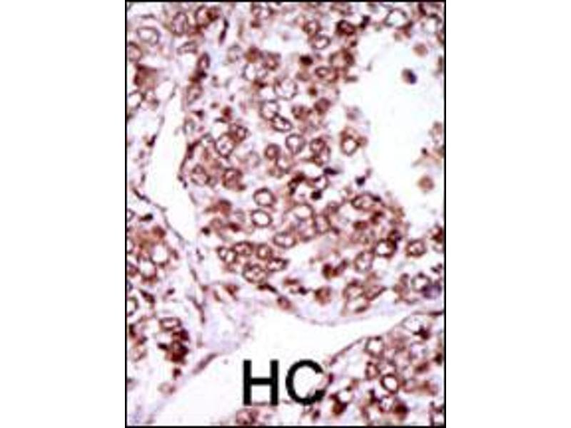 Immunohistochemistry (IHC) image for anti-CAMK2G antibody (Calcium/calmodulin-Dependent Protein Kinase II gamma) (C-Term) (ABIN2159718)