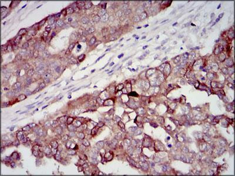 Immunohistochemistry (IHC) image for anti-Insulin-Like Growth Factor 2 (IGF2) (AA 25-180) antibody (ABIN4880781)