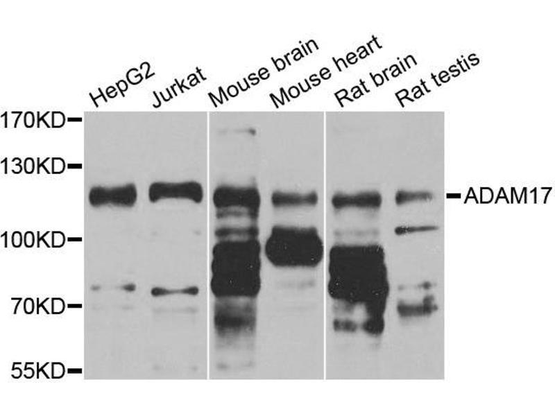 Image no. 1 for anti-ADAM Metallopeptidase Domain 17 (ADAM17) antibody (ABIN6566679)