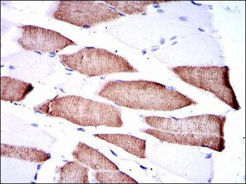 Immunohistochemistry (IHC) image for anti-Mitogen-Activated Protein Kinase Kinase 7 (MAP2K7) antibody (ABIN1843862)