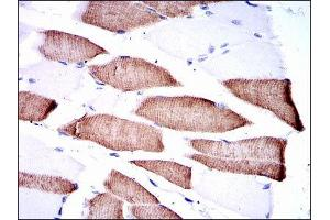 Immunohistochemistry (IHC) image for anti-Mitogen-Activated Protein Kinase Kinase 7 (MAP2K7) antibody (ABIN1843862)