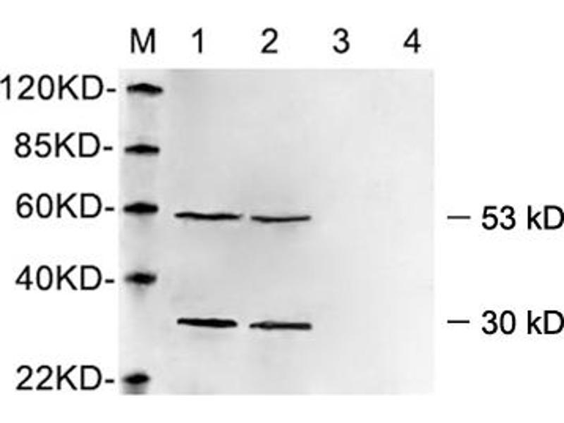 Western Blotting (WB) image for anti-Vimentin antibody (VIM) (AA 400-500) (ABIN1574034)