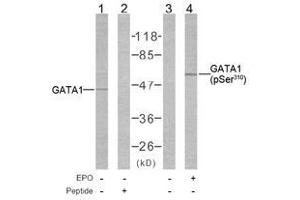 image for anti-GATA Binding Protein 1 (Globin Transcription Factor 1) (GATA1) (pSer310) antibody (ABIN2621191)