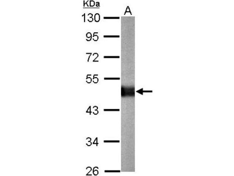Western Blotting (WB) image for anti-Carboxypeptidase E (CPE) (Center) antibody (ABIN4287868)