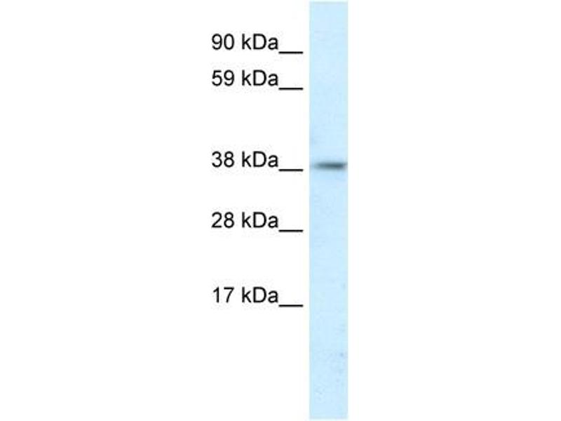 Western Blotting (WB) image for anti-Proteasome (Prosome, Macropain) 26S Subunit, Non-ATPase, 11 (PSMD11) (C-Term) antibody (ABIN2777703)