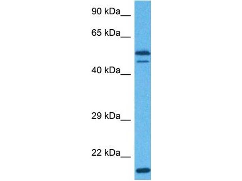 Western Blotting (WB) image for anti-Eukaryotic Translation Initiation Factor 3 Subunit E (EIF3E) (Middle Region) antibody (ABIN2783260)