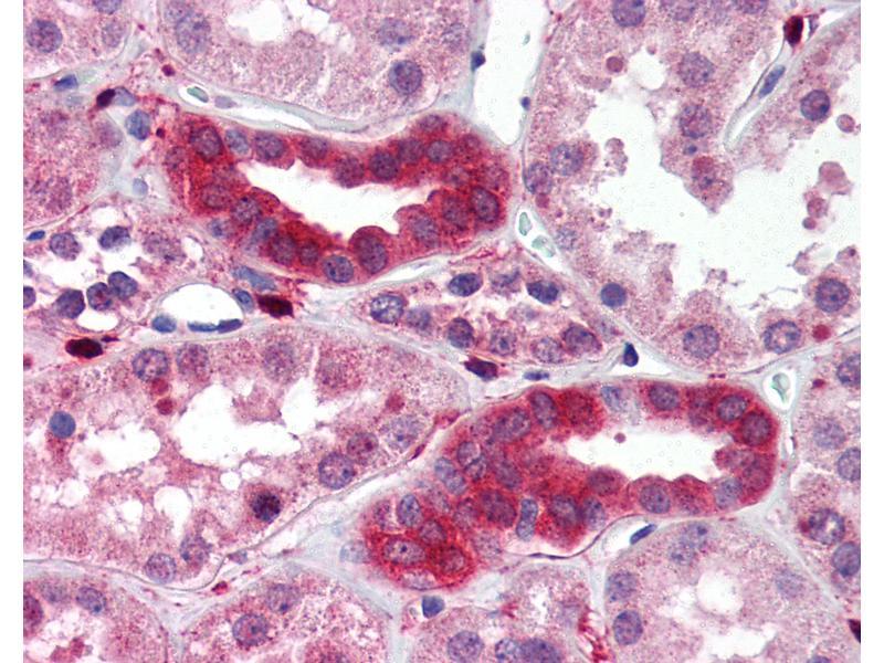 Immunohistochemistry (IHC) image for anti-TGF-beta Activated Kinase 1/MAP3K7 Binding Protein 1 (TAB1) antibody (ABIN214510)