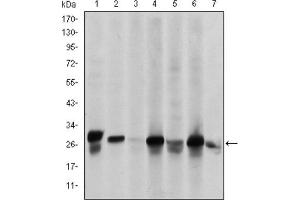 Western Blotting (WB) image for anti-Heat Shock 27kDa Protein 1 (HSPB1) antibody (ABIN1845754)