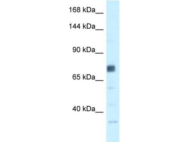Western Blotting (WB) image for anti-Breast Cancer 1 (BRCA1) (N-Term) antibody (ABIN2779333)