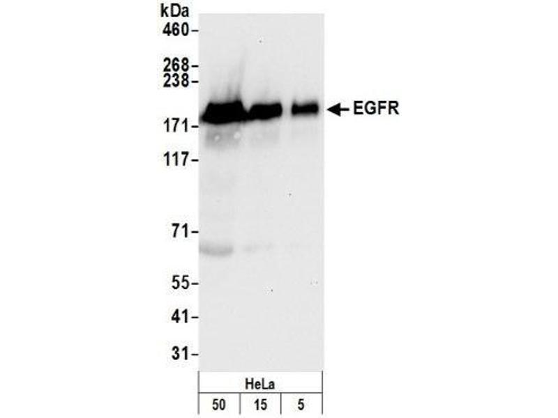 Western Blotting (WB) image for anti-Epidermal Growth Factor Receptor (EGFR) (C-Term) antibody (ABIN152028)