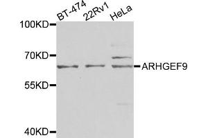 Image no. 3 for anti-Cdc42 Guanine Nucleotide Exchange Factor (GEF) 9 (Arhgef9) antibody (ABIN2736300)