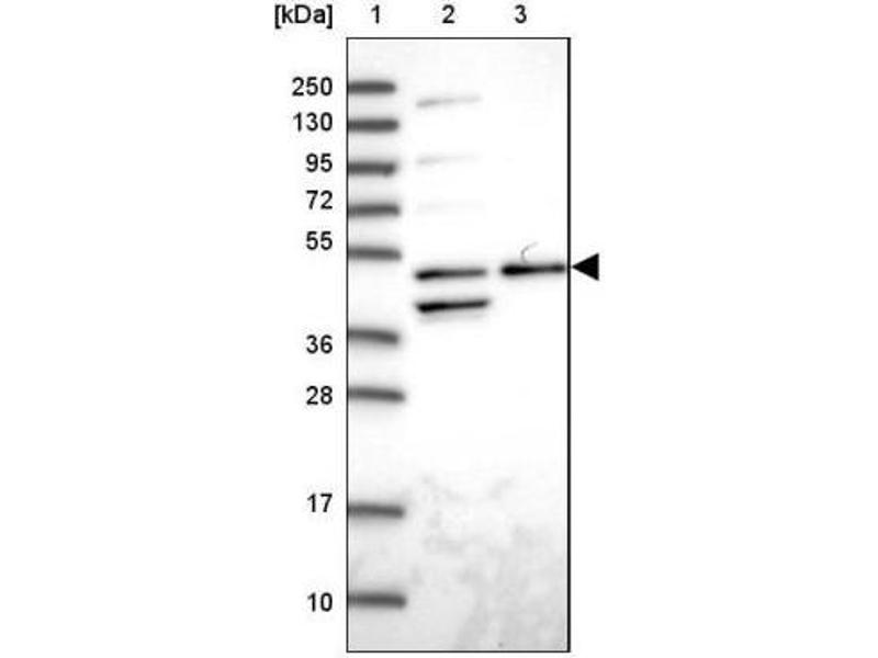 Western Blotting (WB) image for anti-ACTR3 antibody (ARP3 Actin-Related Protein 3 Homolog (Yeast)) (ABIN4278165)