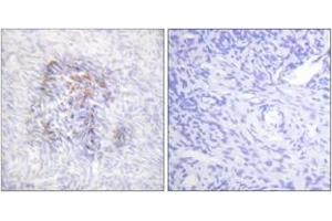 Image no. 2 for anti-Aconitase 1, Soluble (ACO1) (AA 106-155), (pSer138) antibody (ABIN1531675)
