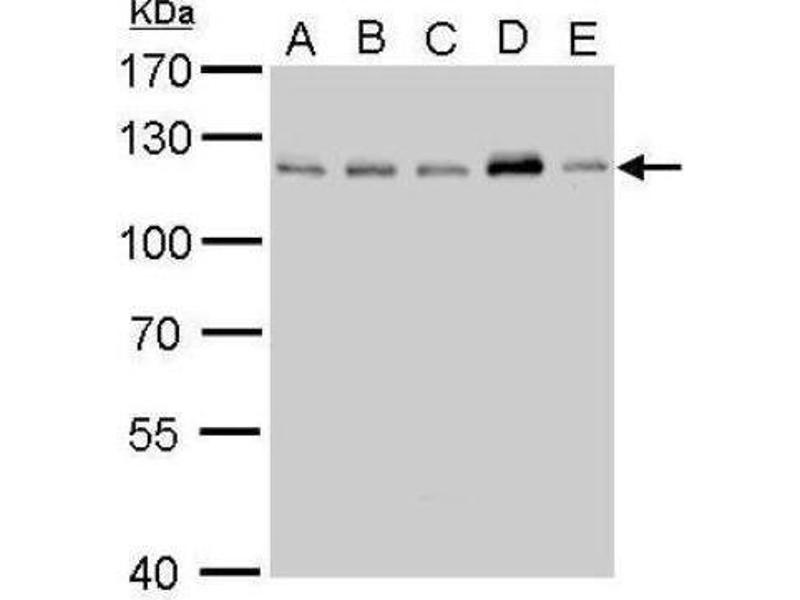 Western Blotting (WB) image for anti-Cylindromatosis (Turban Tumor Syndrome) (CYLD) (C-Term) antibody (ABIN4301701)