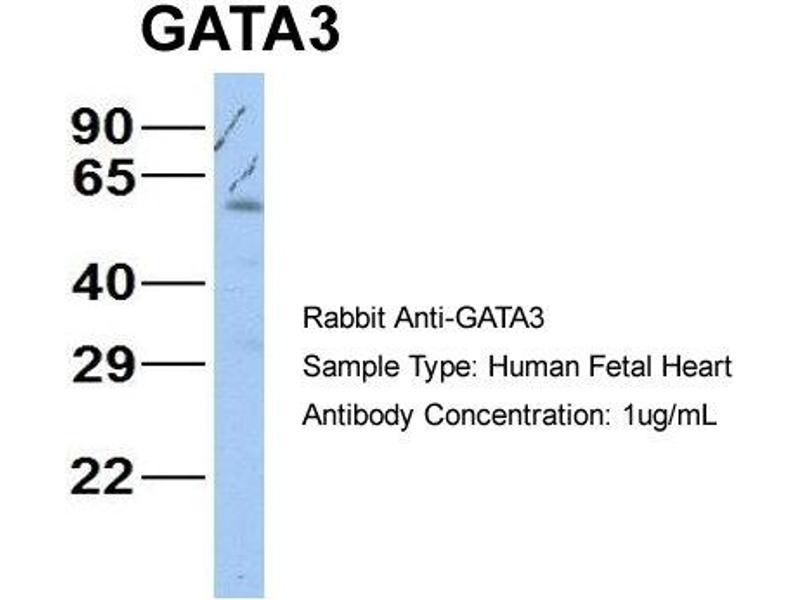 Western Blotting (WB) image for anti-GATA Binding Protein 3 (GATA3) (N-Term) antibody (ABIN2777460)
