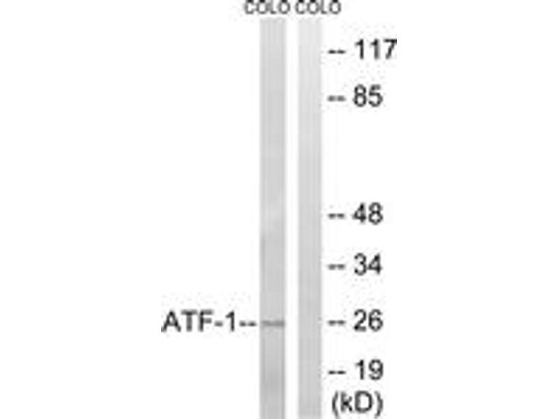Western Blotting (WB) image for anti-Activating Transcription Factor 1 (AFT1) (AA 31-80) antibody (ABIN1532278)