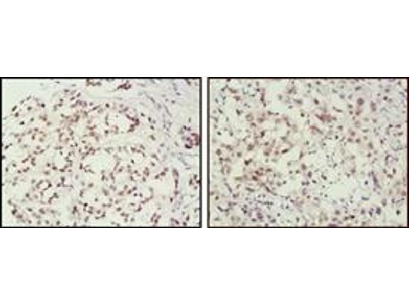 Immunohistochemistry (IHC) image for anti-MSH2 antibody (ABIN1108301)