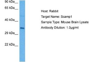 Image no. 1 for anti-Secretory Carrier Membrane Protein 1 (SCAMP1) (N-Term) antibody (ABIN2788078)