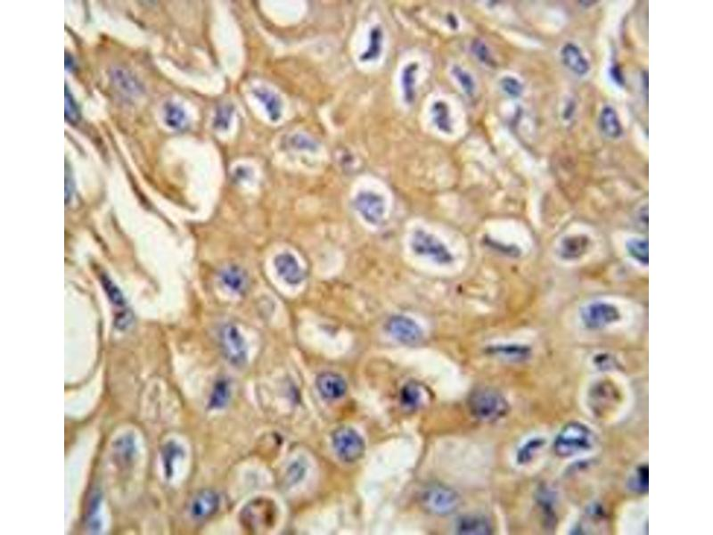Immunohistochemistry (Paraffin-embedded Sections) (IHC (p)) image for anti-Receptor-Interacting serine-threonine Kinase 3 (RIPK3) (Middle Region) antibody (ABIN359363)