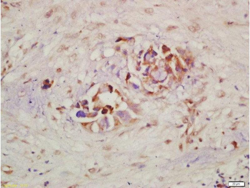 Immunohistochemistry (Paraffin-embedded Sections) (IHC (p)) image for anti-Mast/stem Cell Growth Factor Receptor (KIT) (AA 700-750), (pTyr721) antibody (ABIN743393)