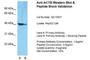 Western Blotting (WB) image for anti-beta Actin antibody (Actin, beta) (Middle Region) (ABIN501930)