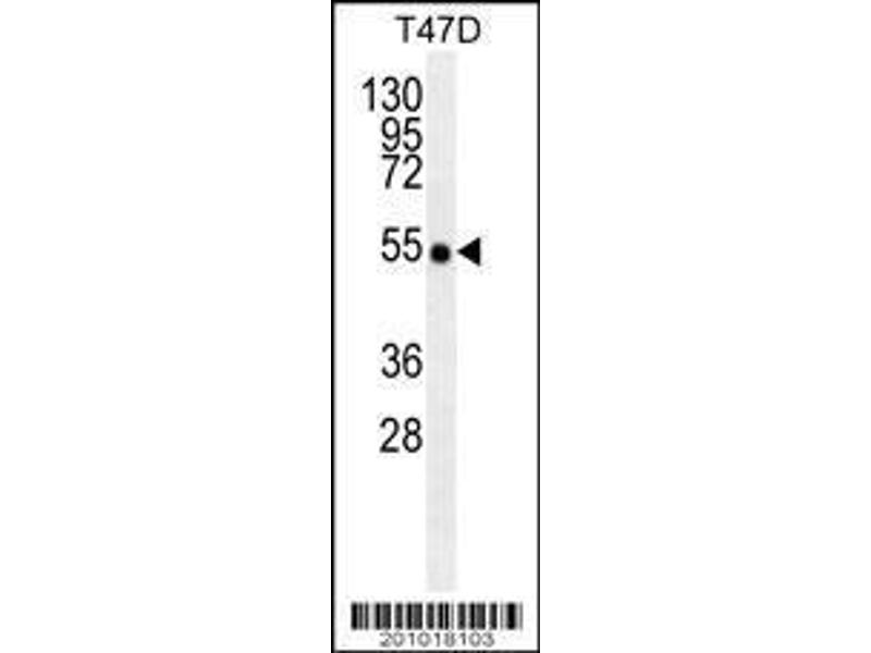 Western Blotting (WB) image for anti-TNF Receptor-Associated Factor 2 (TRAF2) antibody (ABIN659110)