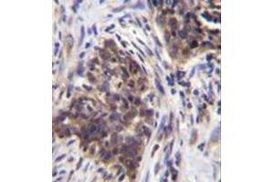 Immunohistochemistry (Paraffin-embedded Sections) (IHC (p)) image for anti-alpha-Glucosidase (AGLU) (AA 173-203), (N-Term) antibody (ABIN950380)