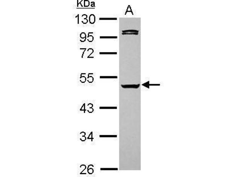 Western Blotting (WB) image for anti-Caspase 1 antibody (CASP1) (Center) (ABIN2855008)