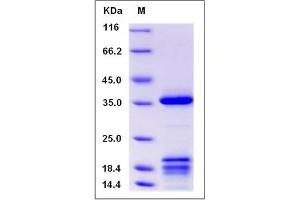 Image no. 1 for Insulin-Like Growth Factor Binding Protein 2, 36kDa (IGFBP2) (AA 1-324) (Active) protein (His tag) (ABIN2009809)