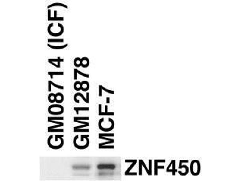 Western Blotting (WB) image for anti-ZBT24 (AA 137-166), (N-Term) antibody (ABIN655829)