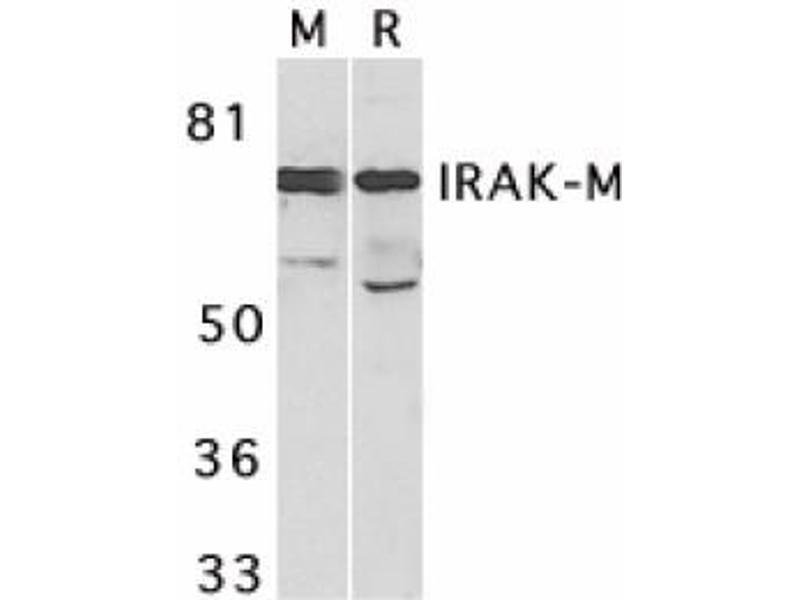 image for anti-IRAK3 antibody (Interleukin-1 Receptor-Associated Kinase 3) (C-Term) (ABIN401363)