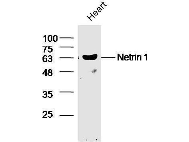 Western Blotting (WB) image for anti-Netrin 1 (NTN1) antibody (ABIN735473)