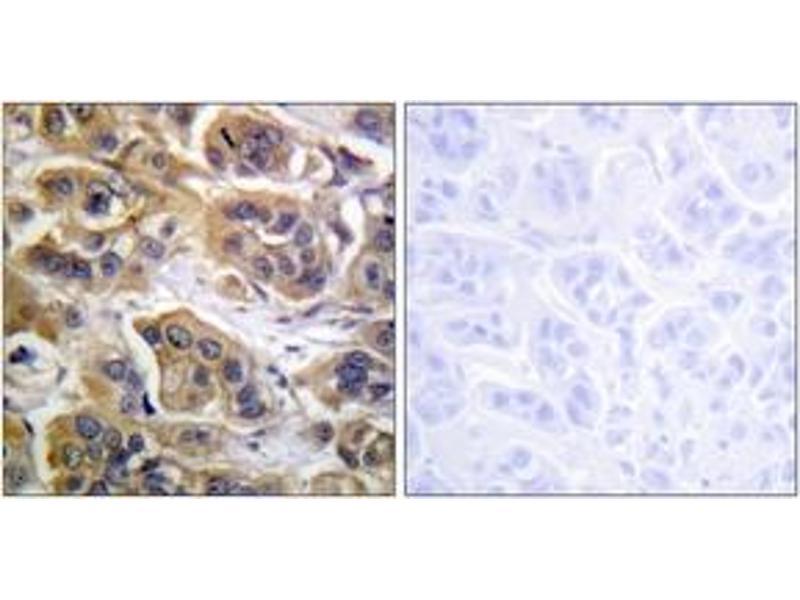 Immunohistochemistry (IHC) image for anti-ERBB3 Antikörper (V-Erb-B2 Erythroblastic Leukemia Viral Oncogene Homolog 3 (Avian)) (ABIN1532626)