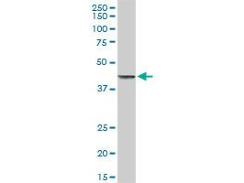 Western Blotting (WB) image for anti-Tumor Necrosis Factor Receptor Superfamily, Member 10b (TNFRSF10B) (AA 1-440), (full length) antibody (ABIN522238)